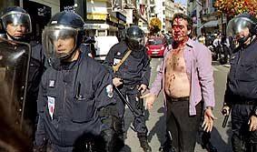 Chomeur frappé par la police
